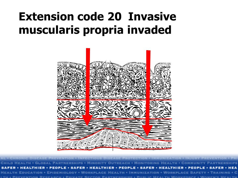 Extension code 20 Invasive muscularis propria invaded