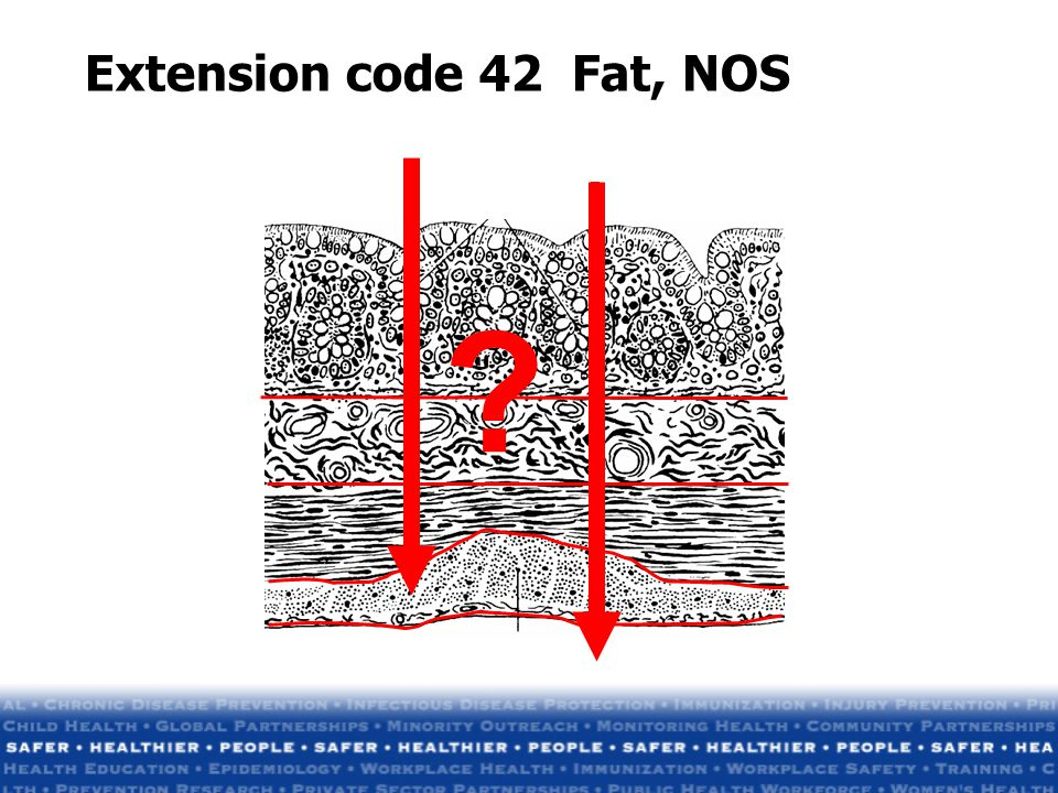 Extension code 42 Fat, NOS