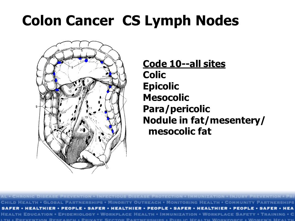 Colon Cancer CS Lymph Nodes Code 10--all sites Colic Epicolic Mesocolic Para/pericolic Nodule in fat/mesentery/ mesocolic fat