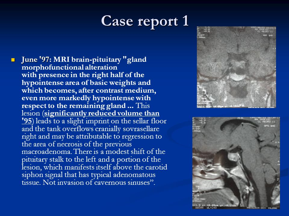 Case report 1 June 97 June 97: MRI brain-pituitary gland morphofunctional alteration with presence in the right half of the hypointense area of basic weights and which becomes, after contrast medium, even more markedly hypointense with respect to the remaining gland...