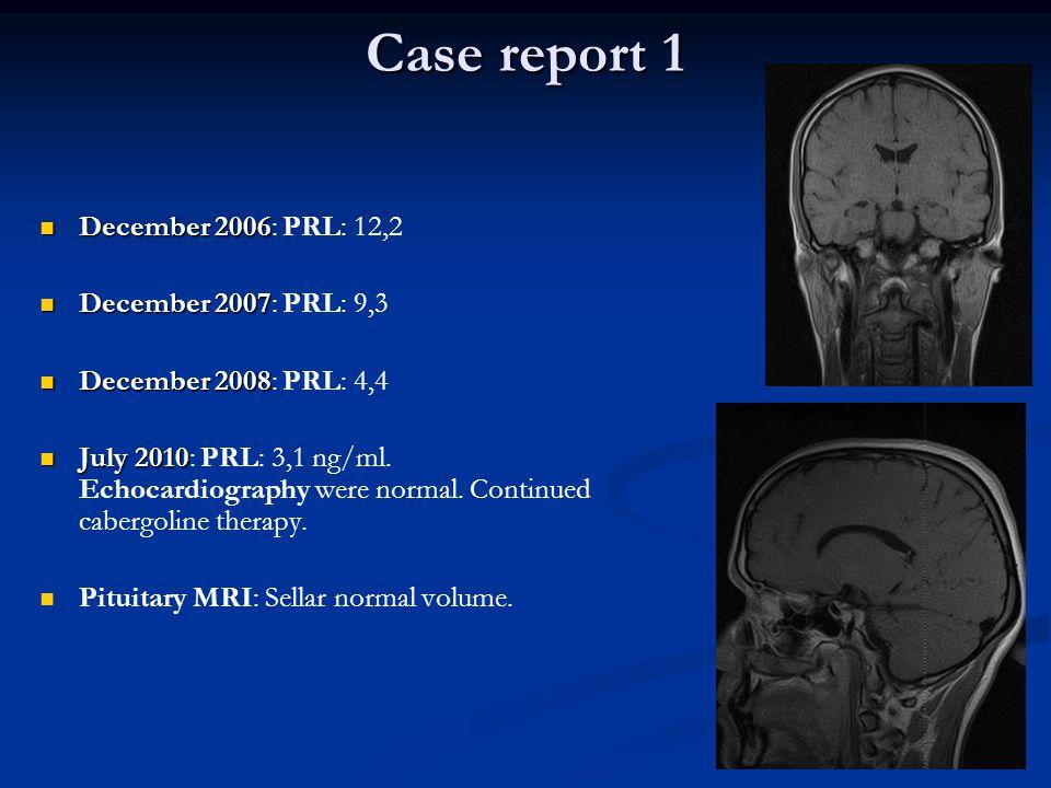 Case report 1 December 2006 December 2006: PRL: 12,2 December 2007 December 2007: PRL: 9,3 December 2008 December 2008: PRL: 4,4 July 2010 July 2010: PRL: 3,1 ng/ml.