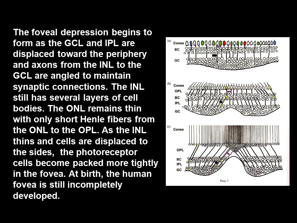 The foveal depression begins to form as the GCL and IPL are displaced toward the periphery and axons from the INL to the GCL are angled to maintain sy