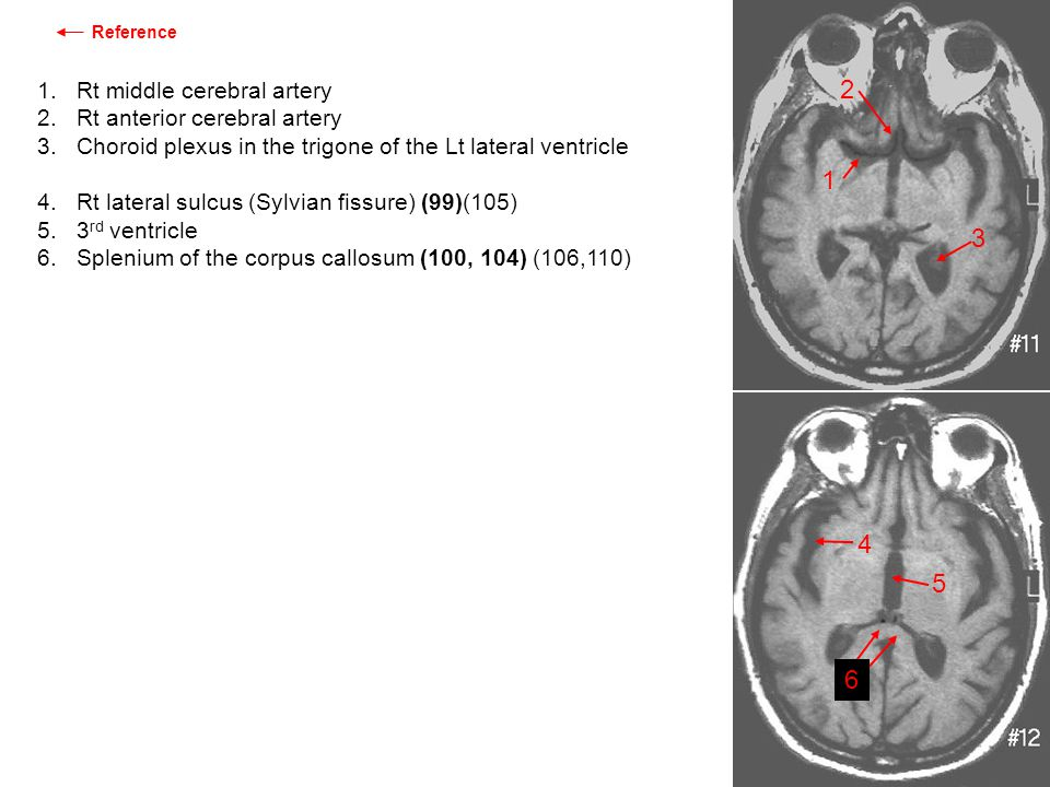 1. Rt middle cerebral artery 2. Rt anterior cerebral artery 3. Choroid plexus in the trigone of the Lt lateral ventricle 4. Rt lateral sulcus (Sylvian