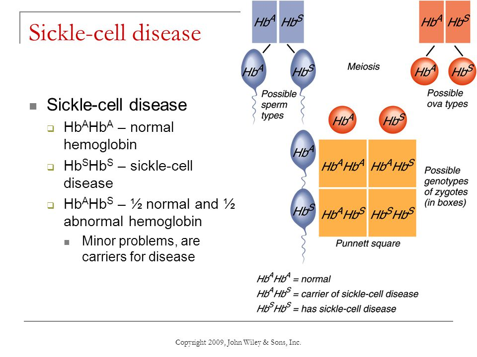 Copyright 2009, John Wiley & Sons, Inc. Sickle-cell disease  Hb A Hb A – normal hemoglobin  Hb S Hb S – sickle-cell disease  Hb A Hb S – ½ normal a