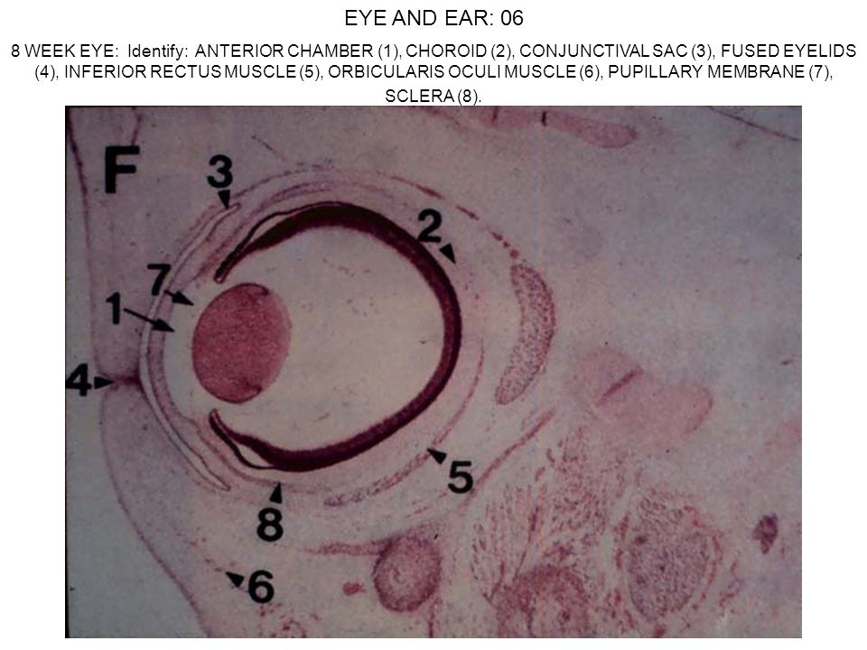 EYE AND EAR: 06 8 WEEK EYE: Identify: ANTERIOR CHAMBER (1), CHOROID (2), CONJUNCTIVAL SAC (3), FUSED EYELIDS (4), INFERIOR RECTUS MUSCLE (5), ORBICULA