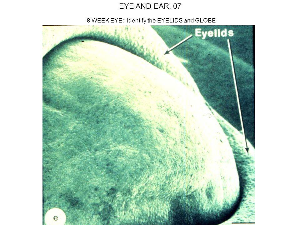 EYE AND EAR: 07 8 WEEK EYE: Identify the EYELIDS and GLOBE