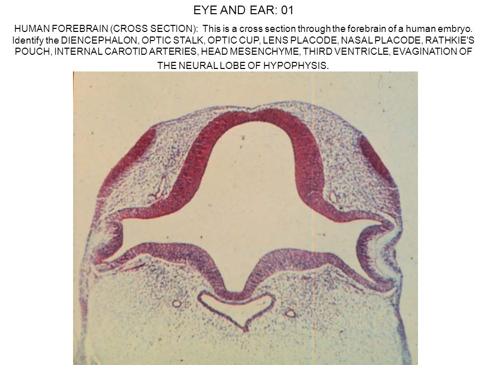 EYE AND EAR: 01 HUMAN FOREBRAIN (CROSS SECTION): This is a cross section through the forebrain of a human embryo. Identify the DIENCEPHALON, OPTIC STA