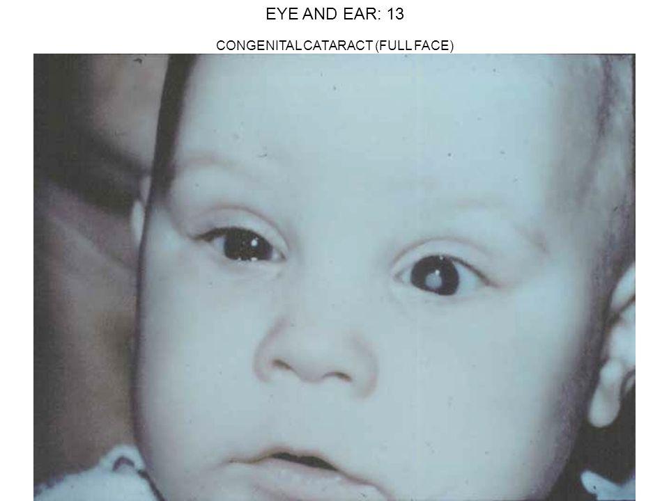 EYE AND EAR: 13 CONGENITAL CATARACT (FULL FACE)