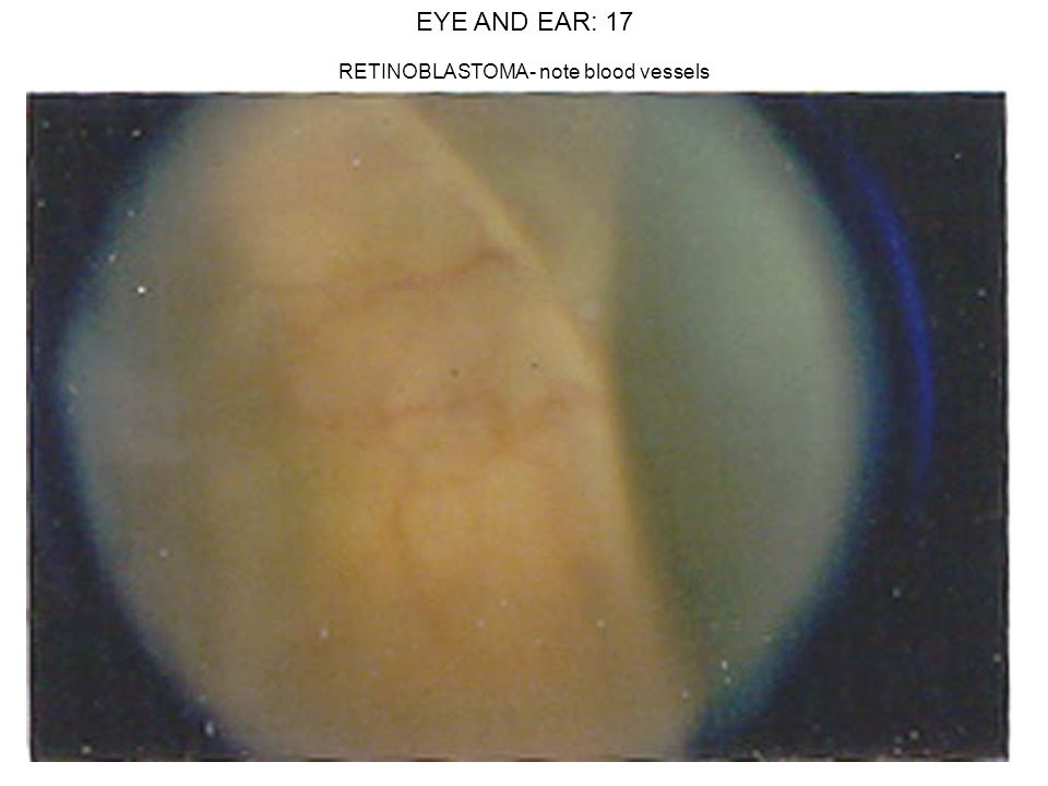 EYE AND EAR: 17 RETINOBLASTOMA- note blood vessels