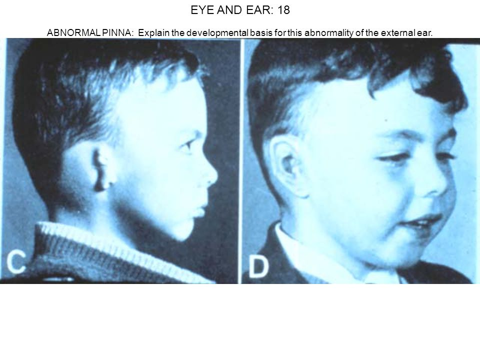 EYE AND EAR: 18 ABNORMAL PINNA: Explain the developmental basis for this abnormality of the external ear.