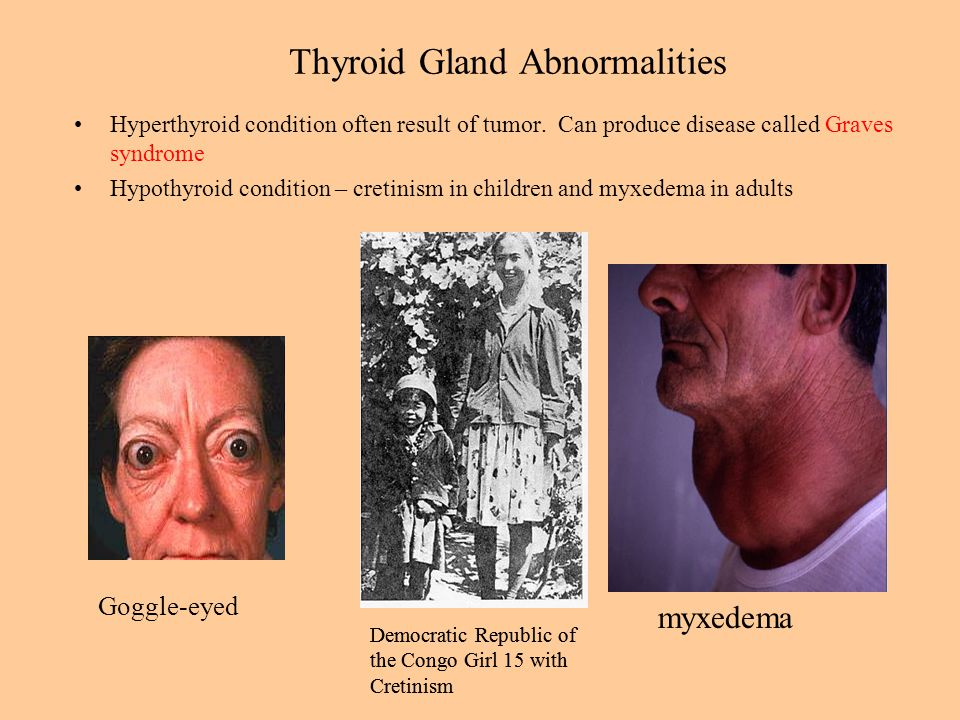 Thyroid Gland Abnormalities Hyperthyroid condition often result of tumor.