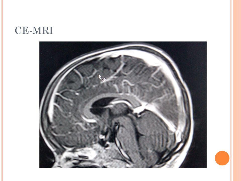CE-MRI
