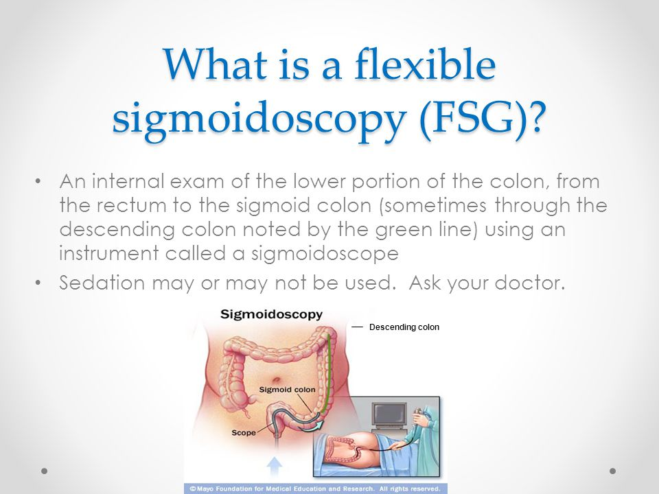 What is a flexible sigmoidoscopy (FSG).