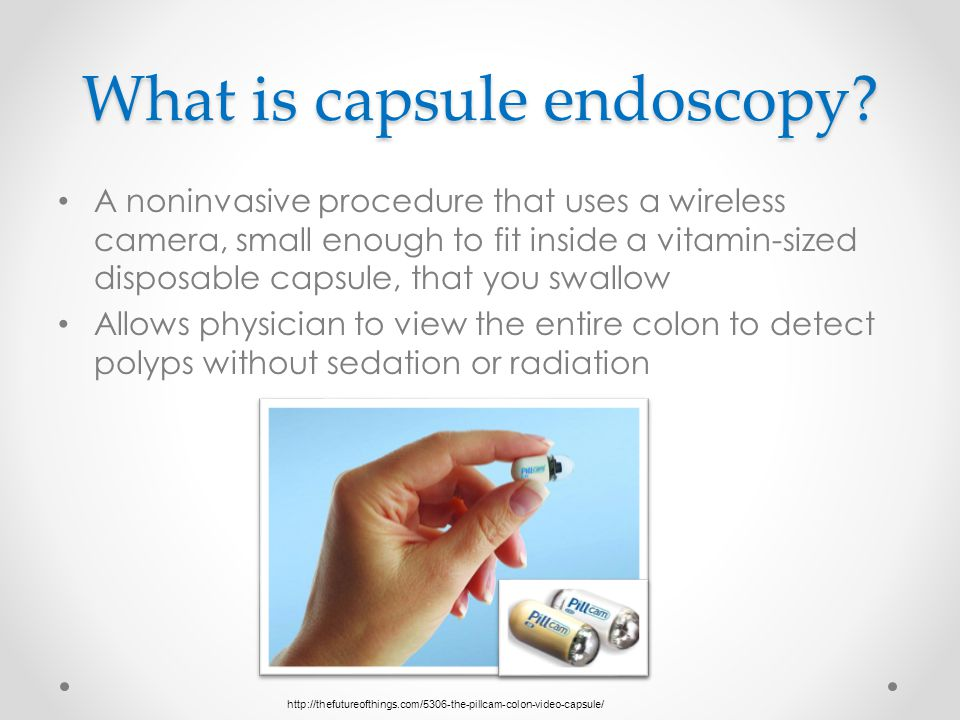 What is capsule endoscopy.