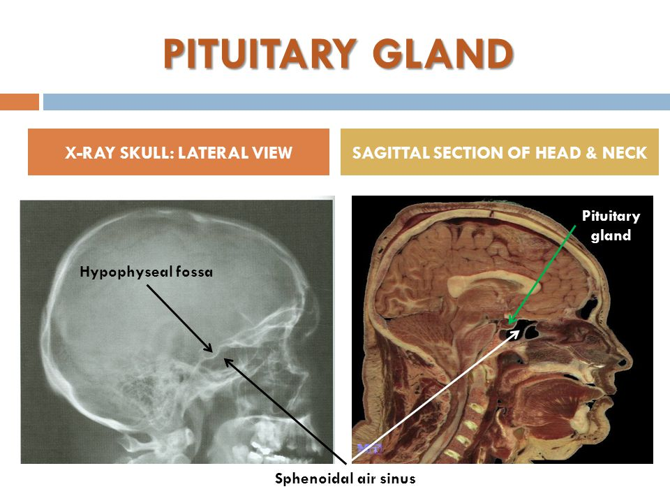 PITUITARY GLAND X-RAY SKULL: LATERAL VIEWSAGITTAL SECTION OF HEAD & NECK Hypophyseal fossa Sphenoidal air sinus Pituitary gland