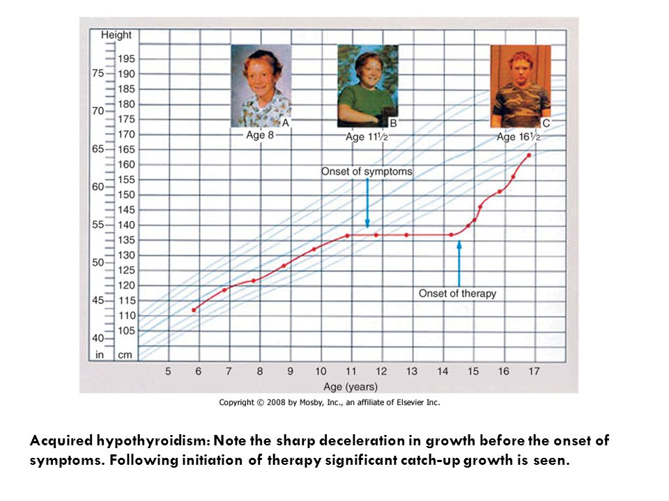 Acquired hypothyroidism: Note the sharp deceleration in growth before the onset of symptoms. Following initiation of therapy significant catch-up grow