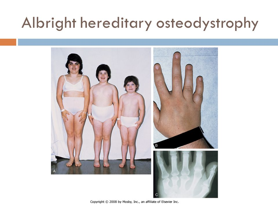 Albright hereditary osteodystrophy