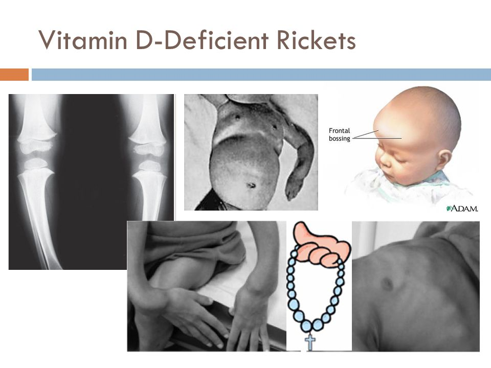 Vitamin D-Deficient Rickets