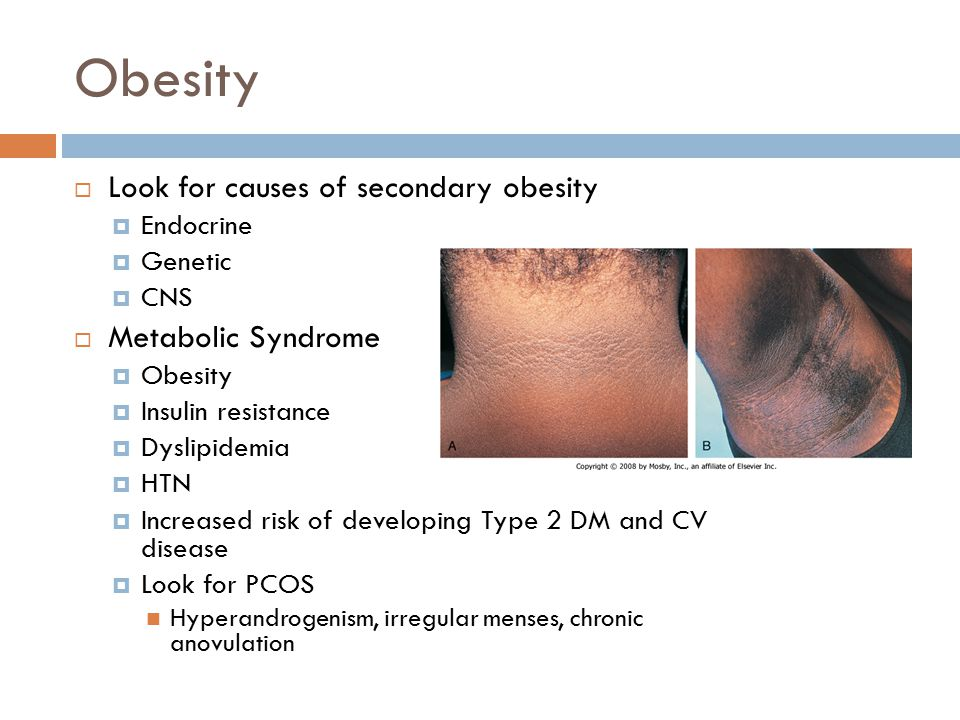 Obesity  Look for causes of secondary obesity  Endocrine  Genetic  CNS  Metabolic Syndrome  Obesity  Insulin resistance  Dyslipidemia  HTN 