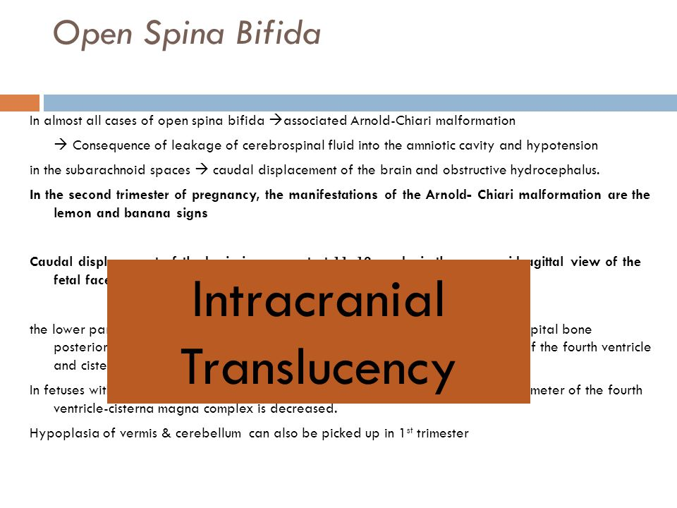 Open Spina Bifida In almost all cases of open spina bifida  associated Arnold-Chiari malformation  Consequence of leakage of cerebrospinal fluid int