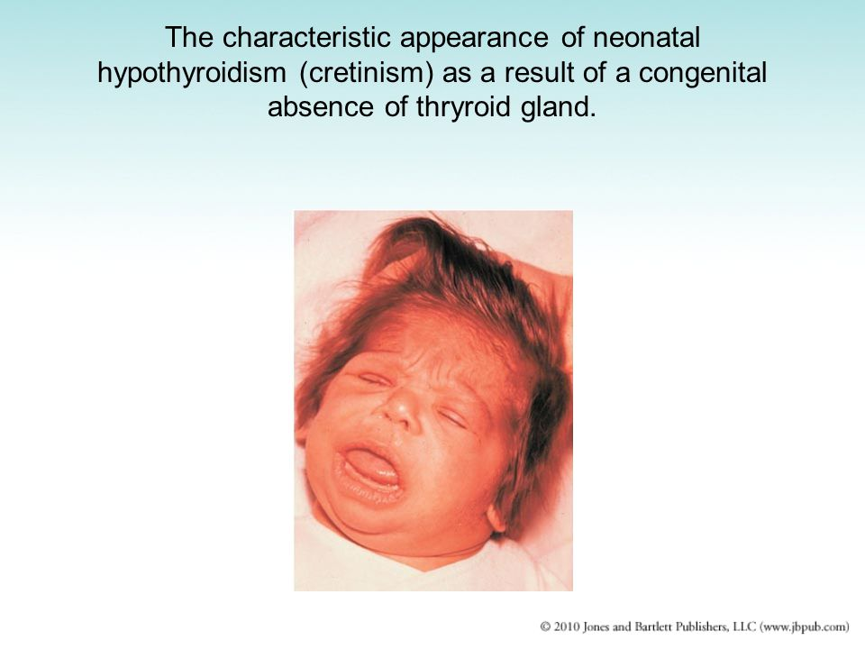 The characteristic appearance of neonatal hypothyroidism (cretinism) as a result of a congenital absence of thryroid gland.