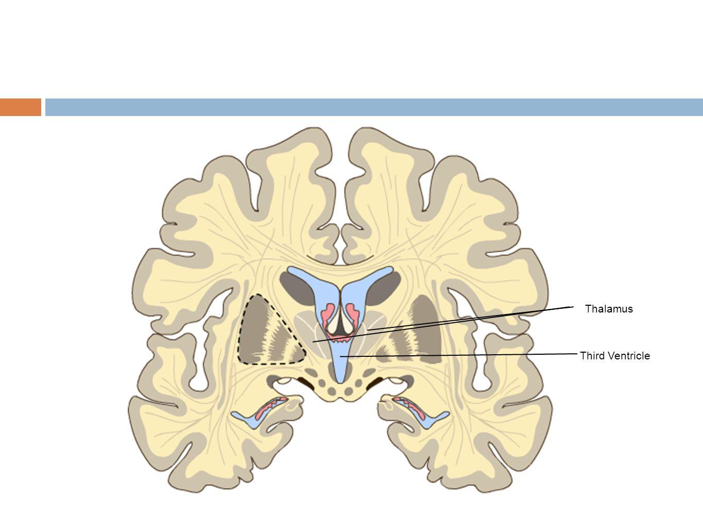 Third Ventricle Thalamus