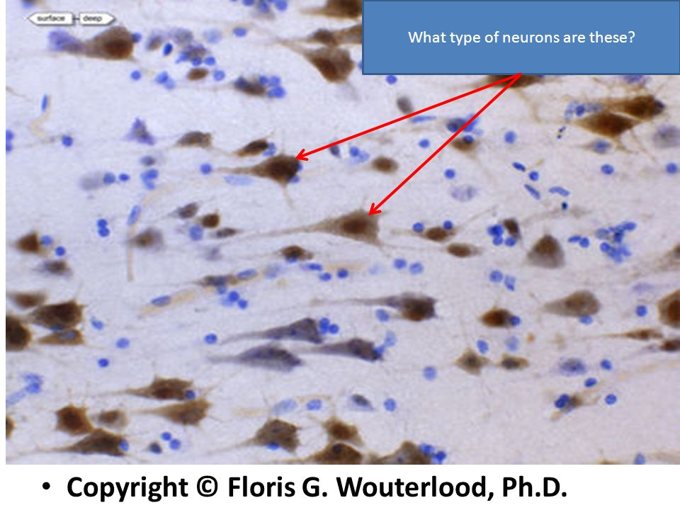 Copyright © Floris G. Wouterlood, Ph.D. What type of neurons are these