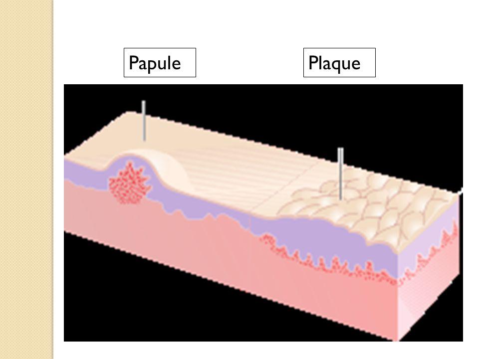 PlaquePapule