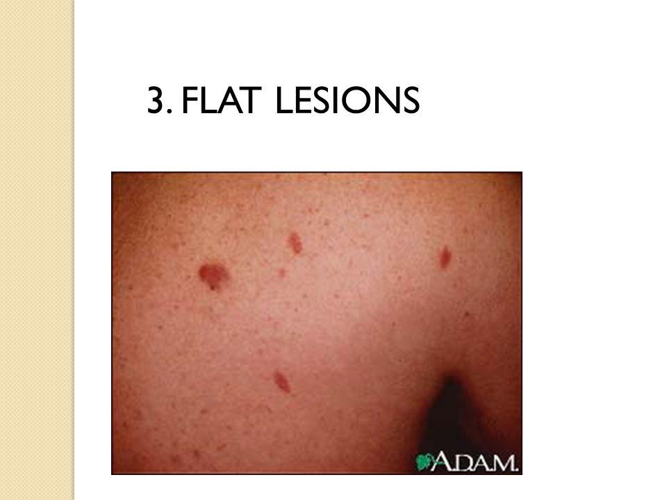 3. FLAT LESIONS