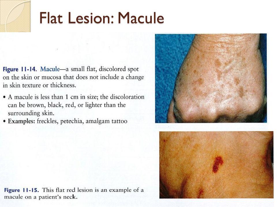 Flat Lesion: Macule