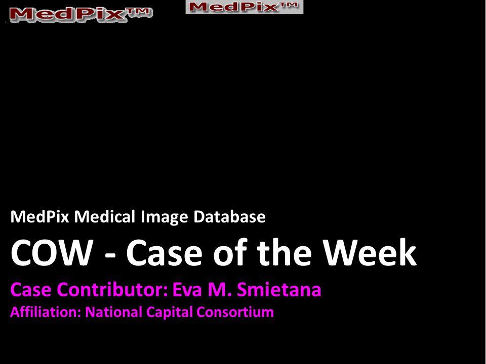 MedPix Medical Image Database COW - Case of the Week Case Contributor: Eva M.