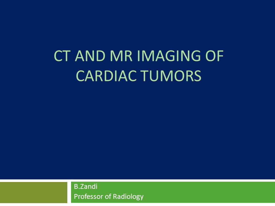 Rhabdomyomas  the Most Common Cardiac Tumors in Infancy and Childhood,  Associated Syndromes : Tuberous Sclerosis in up to 50% of cases  Mostly Asymptomatic and generally regress spontaneously.