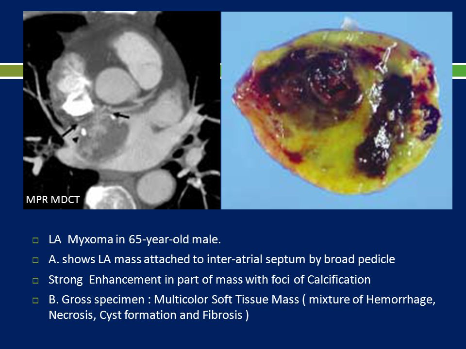  LA Myxoma in 65-year-old male.  A. shows LA mass attached to inter-atrial septum by broad pedicle  Strong Enhancement in part of mass with foci of
