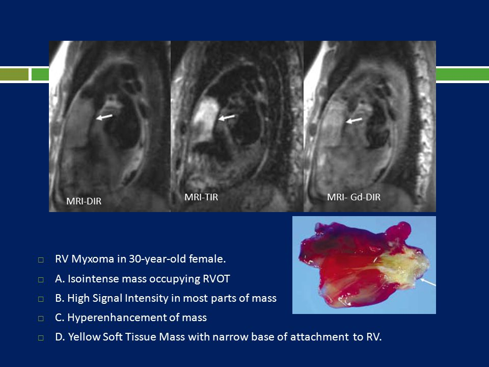  RV Myxoma in 30-year-old female.  A. Isointense mass occupying RVOT  B. High Signal Intensity in most parts of mass  C. Hyperenhancement of mass