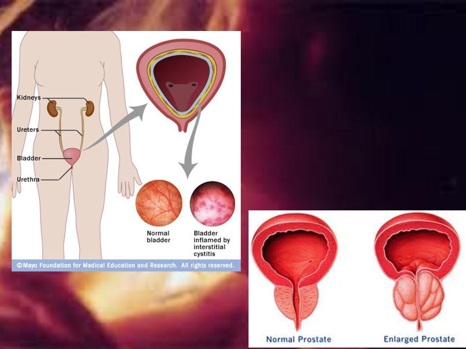 Older men suffer hypertrophy of gland, strangling urethra- making urination difficult and increases risk of bladder infections-________________ and ki