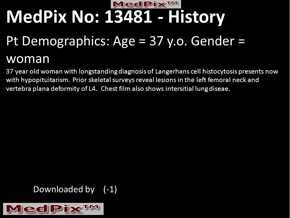 MedPix No: 13481 - History Pt Demographics: Age = 37 y.o.