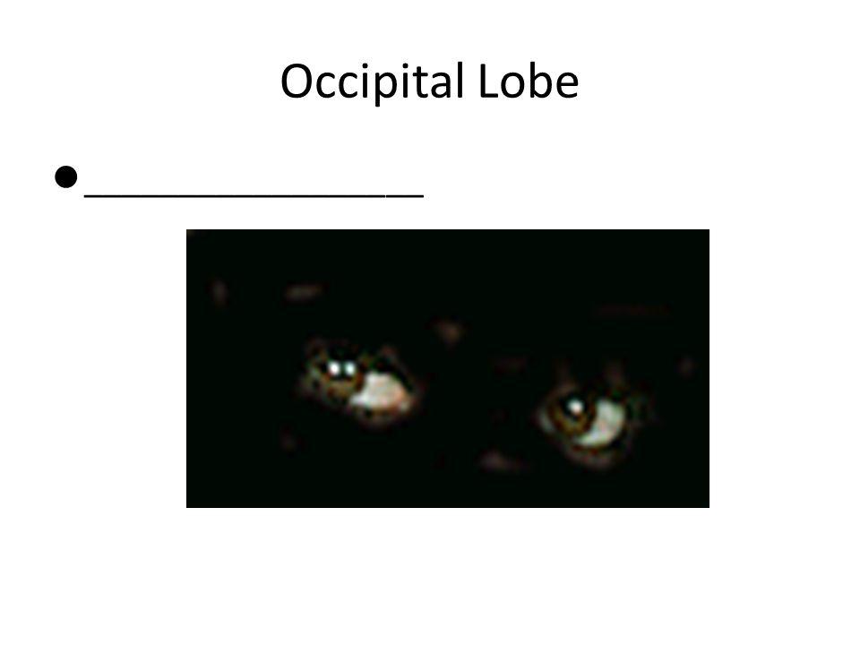 Occipital Lobe __________________