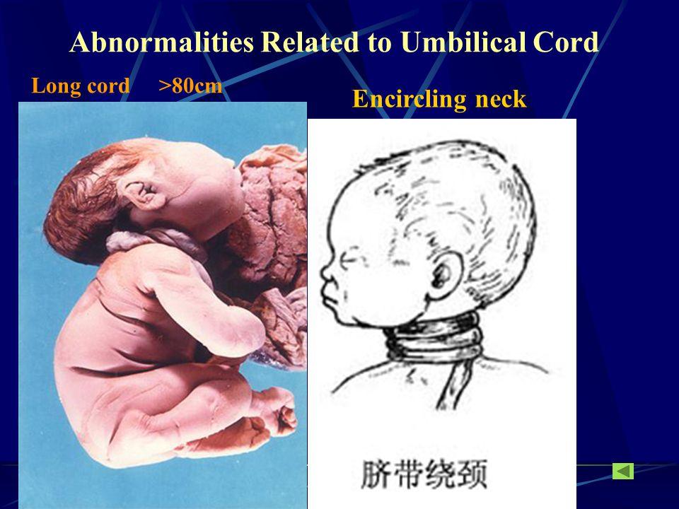 Normal Length 40 ~ 60cm D: 2cm40 ~ 60cm D: 2cm Intervillous space Decidual septum Cytotrophoblast shell Spiral artery Decidua basalis Chorion laeve Chorion frondosum