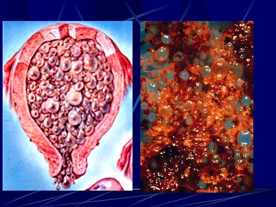 2.Placenta Form: maternal surface (cotyledon)