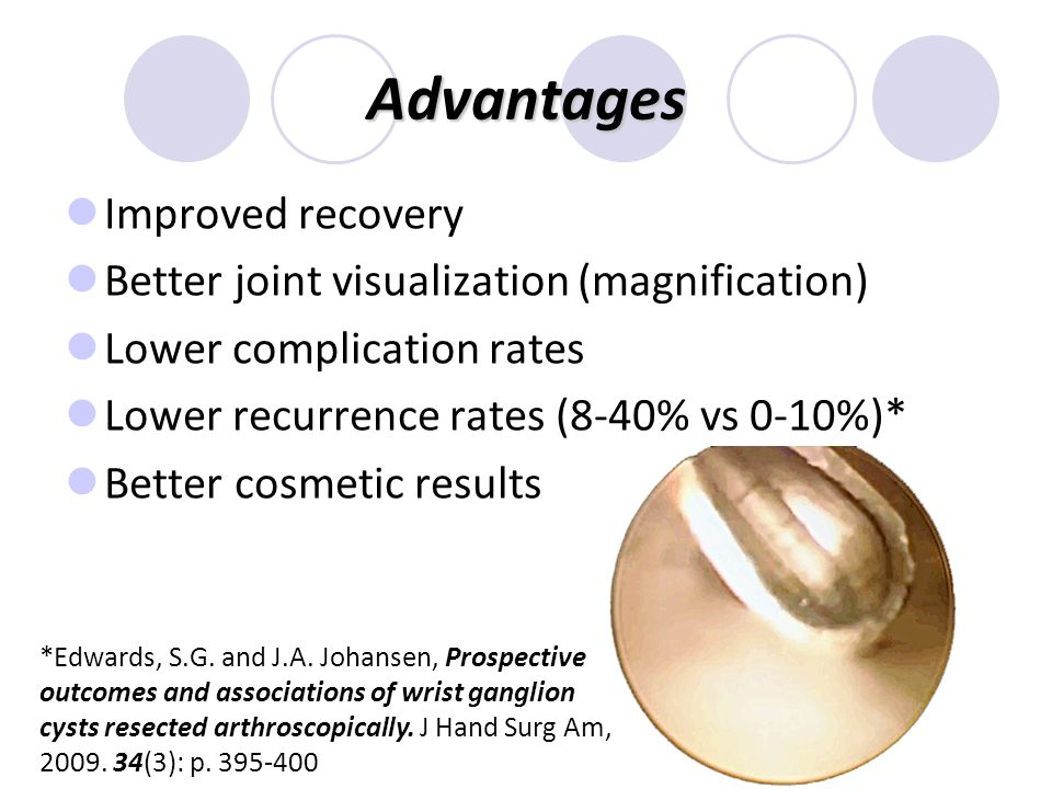 Advantages Improved recovery Better joint visualization (magnification) Lower complication rates Lower recurrence rates (8-40% vs 0-10%)* Better cosmetic results *Edwards, S.G.