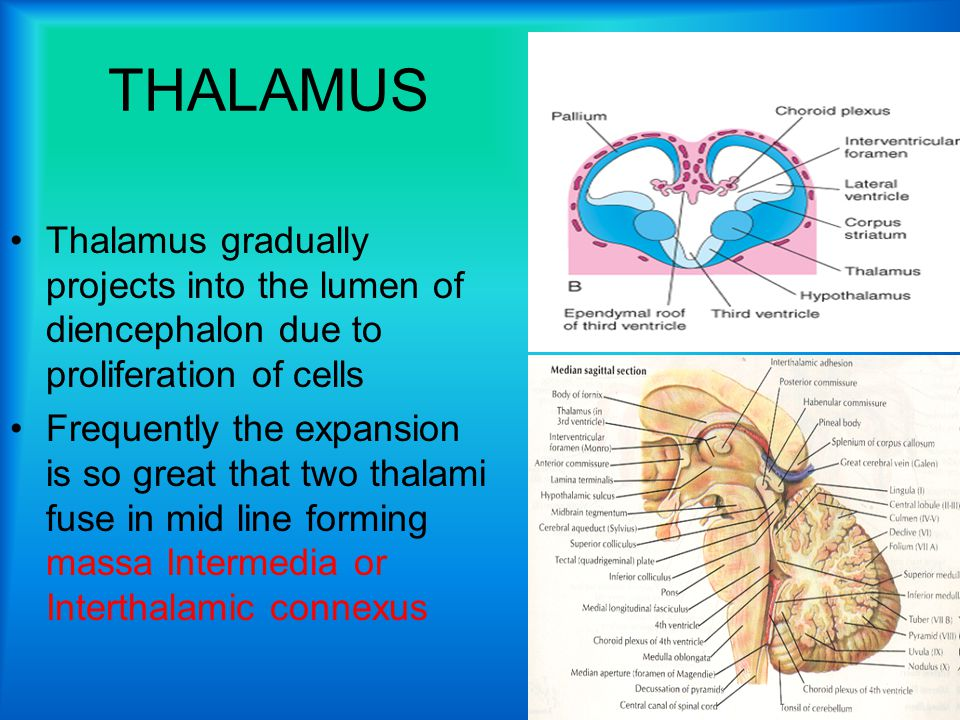 THALAMUS Thalamus gradually projects into the lumen of diencephalon due to proliferation of cells Frequently the expansion is so great that two thalami fuse in mid line forming massa Intermedia or Interthalamic connexus