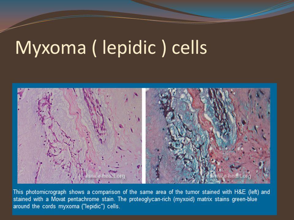 Myxoma ( lepidic ) cells