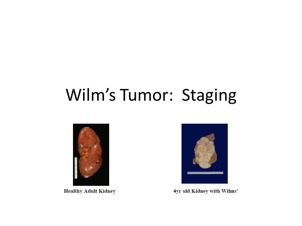 Wilm's Tumor: Staging