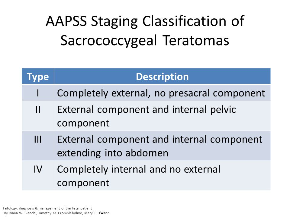 AAPSS Staging Classification of Sacrococcygeal Teratomas TypeDescription ICompletely external, no presacral component IIExternal component and interna