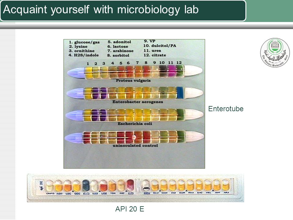 Acquaint yourself with microbiology lab Anaerobic station