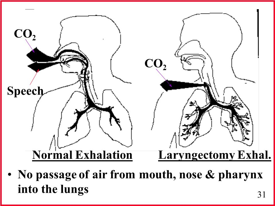 31 No passage of air from mouth, nose & pharynx into the lungs Normal Exhalation Laryngectomy Exhal. CO 2 Speech CO 2