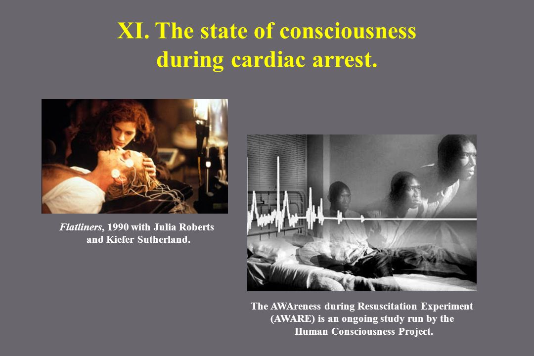 XI. The state of consciousness during cardiac arrest. The AWAreness during Resuscitation Experiment (AWARE) is an ongoing study run by the Human Consc