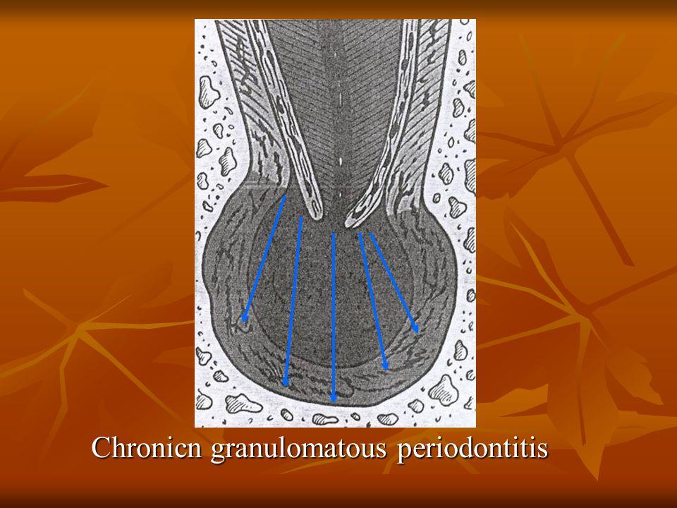 Chronicn granulomatous periodontitis