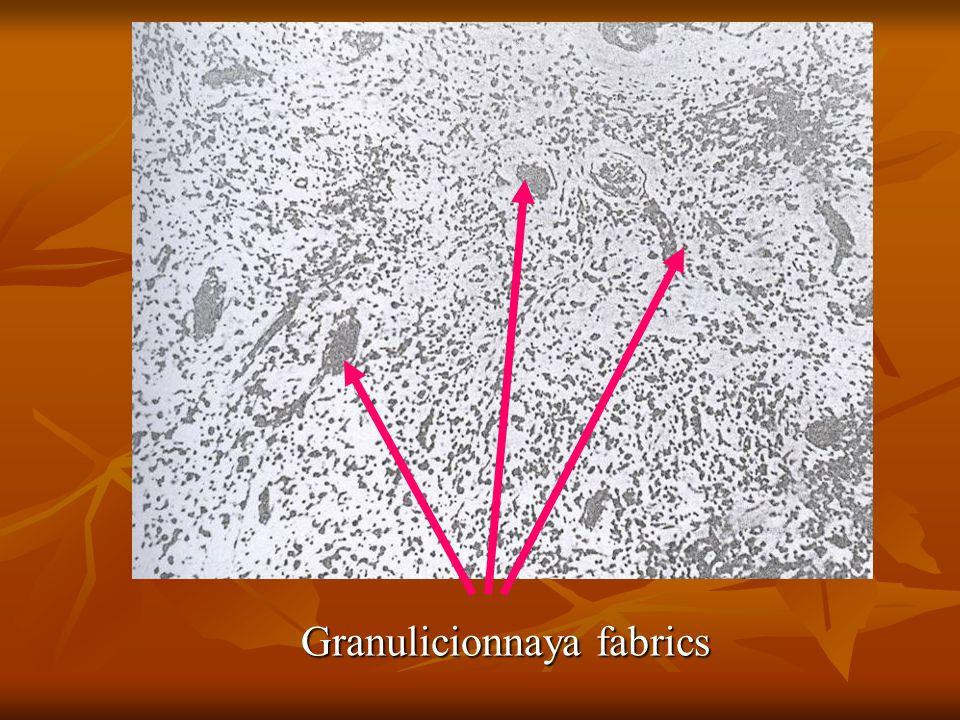 Granulicionnaya fabrics