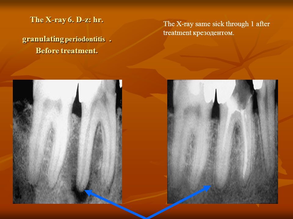 The X-ray 6. D-z: hr. granulating periodontitis.